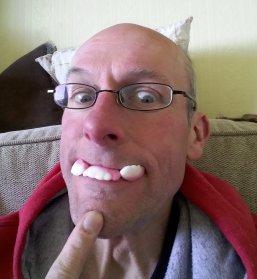 Stef wearing gummy teeth